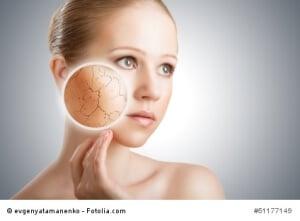 Trockene Haut – was tun? Tipps und Hausmittel
