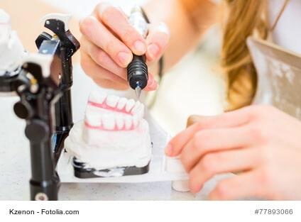 Was ist bei Zahnersatz zu beachten