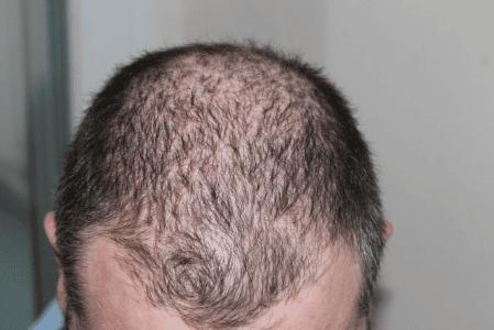 Haarausfall – Problem ohne Hoffnung?
