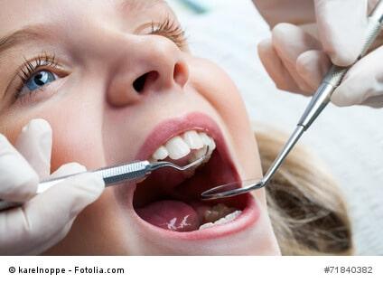 Mit einer Zahnzusatzversicherung Finanzierungslücken schließen