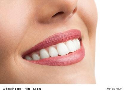 Schöne weiße Zähne – so wird aus dem Lächeln ein optischer Hingucker