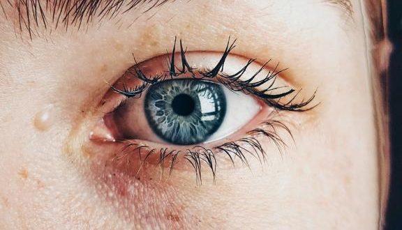 Spätakne: Wie Sie den Hautunreinheiten ab 30 am besten begegnen