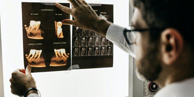 Zahnimplantat – OP: Darauf ist danach zu achten